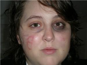 "Ashley Todd ""victim"" picture"